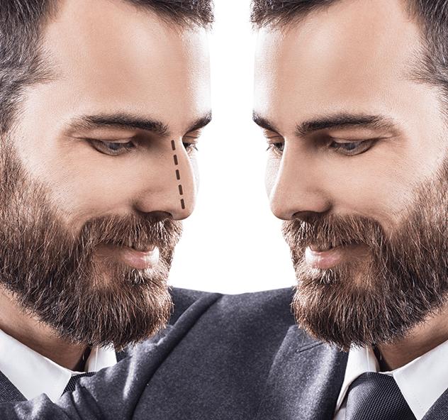 Erkeklerde Yüz Estetiği Nasıl Yapılır?